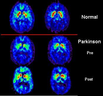 Parkinson-pet