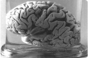 Cerebro de Levorgne