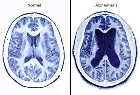 No hay olvido que valga! 21 de septiembre, Día Mundial del Alzheimer ...