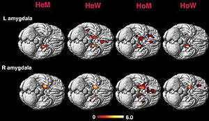 cerebro gay
