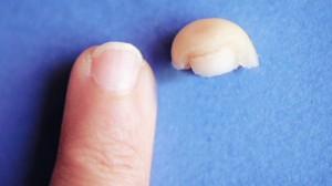 nr.cohen.tissue.regeneration.cnn.640x360